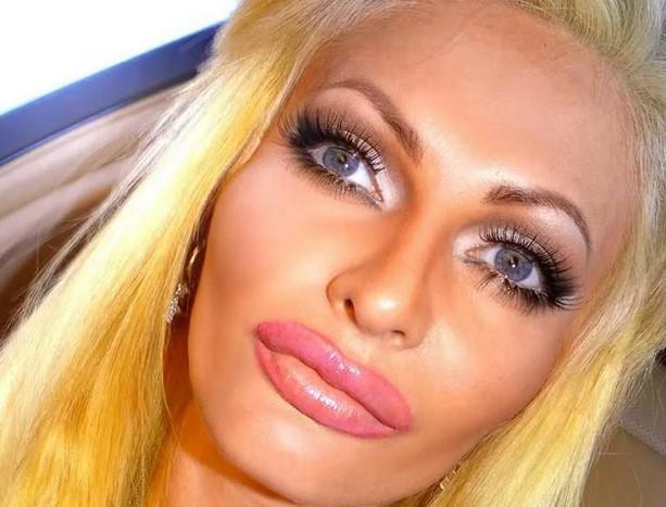 Ботексные губы