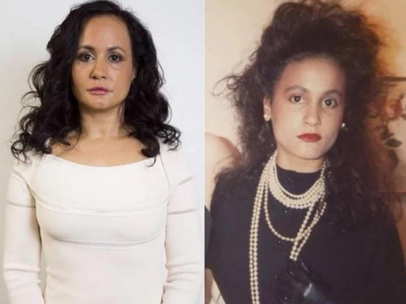 Женщина отказалась от улыбки 40 лет назад и стала выглядеть моложе