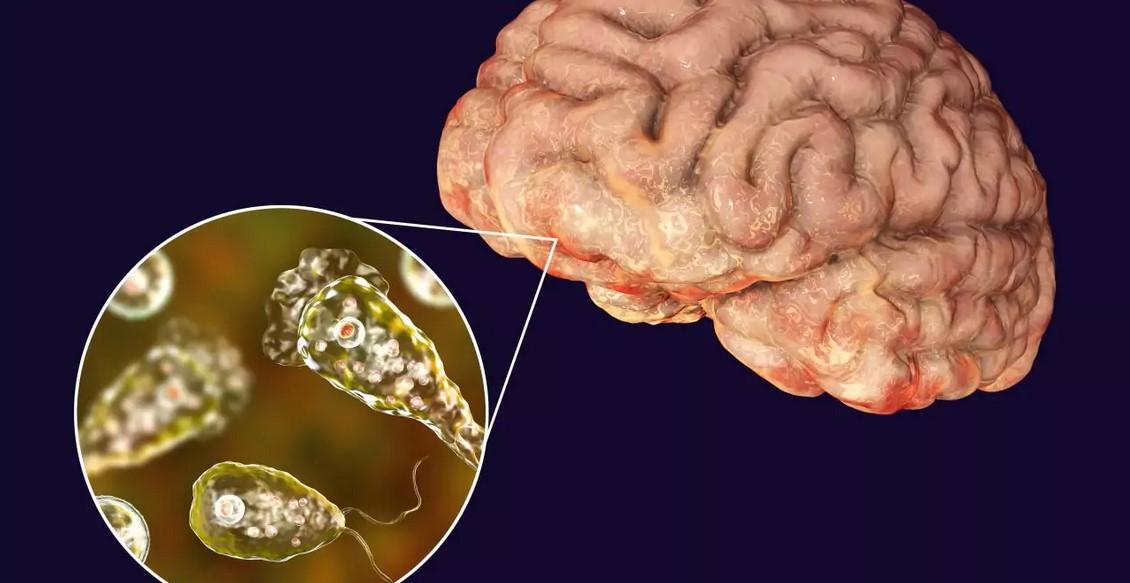 Амеба-мозгоед из-за изменений климата расширила зону обитания