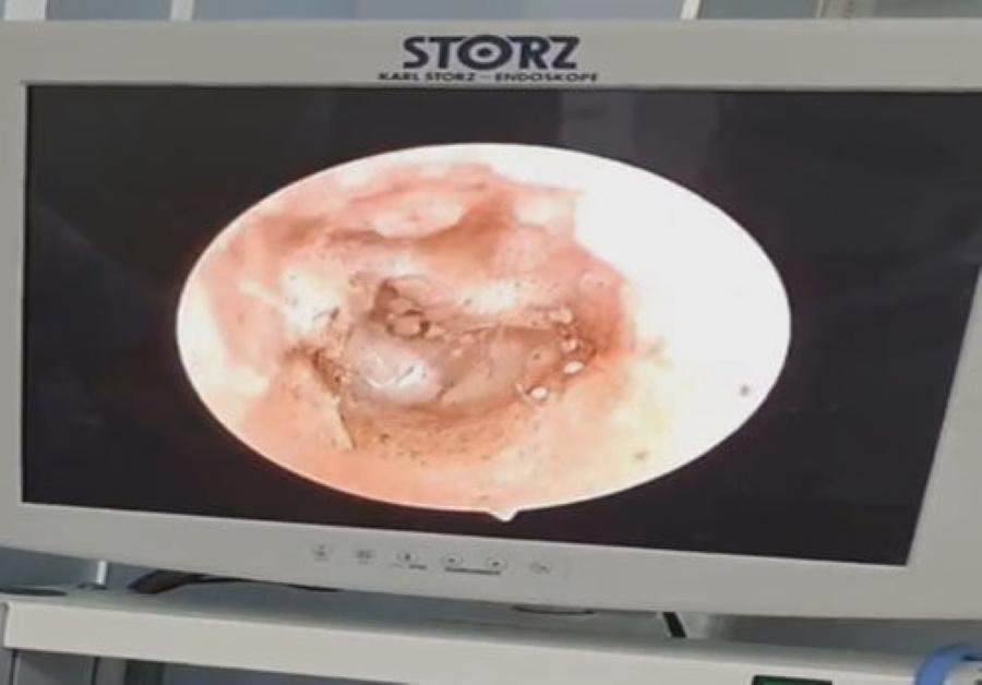 Вьетнамский врач обнаружил десятки грибов, растущих в ушах пациента